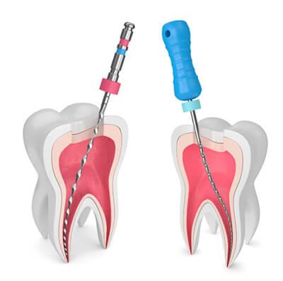 درباره عصب کشی دندان, نحوه عصب کشی دندان