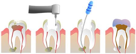 آشنایی با عمل کانال ریشه دندان یا عصب کشی,آشنایی با عصب کشی دندان