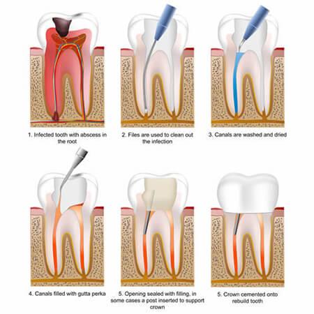 دوام دندان عصب کشی شده,راهنمای عصب کشی کردن دندان