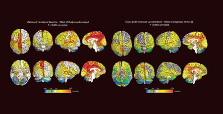 تفاوت های خاصی میان مغز زنان و مردان,تفاوت میان مغز زنان و مردان