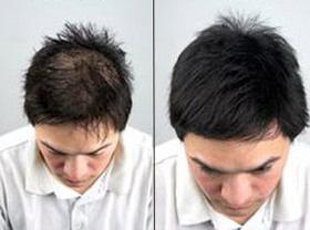 مزوتراپی مو,مزوتراپی موی سر