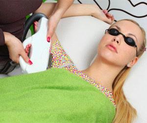 لیزر, لیزر موهای زائد, لیزر موهای زائد بدن, از بین بردن موهای زائد بدن