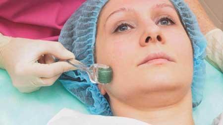 جوانسازی پوست,دستگاه میکرونیدلینگ,عوارض میکرونیدلینگ
