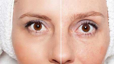 جوانسازی پوست بامیکرونیدلینگ,میکرونیدلینگ,روشن کردن پوست