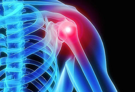 تأثیر ورزش بر روی شانه یخ زده, درمان شانه یخ زده با ورزش, حرکات ورزشی برای درمان شانه یخ زده