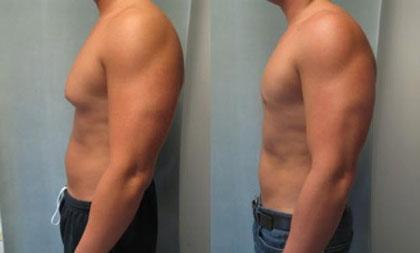 درمان ژنیکوماستی با ورزش,درمان ژنیکوماستی,افتادگی سینه مردان