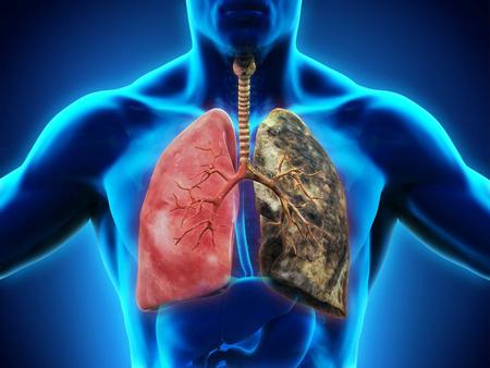 تقویت ریه ها ,تقویت ریه , راههای تقویت ریه