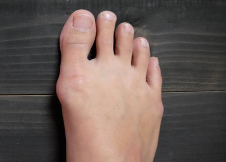 قوز شست پا, هالوکس والگوس,بونيون, درمان قوز شست پا