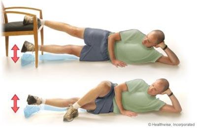 پای پرانتزی,عوامل ایجاد پای پرانتزی,حرکات اصلاحی پای پرانتزی