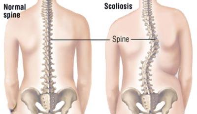 اسکولیوز,علائم اسکولیوز,انحراف در ستون مهره ها