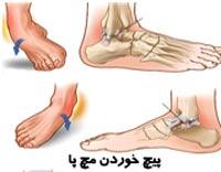 4 ورزش برای کشیدگی مچ پا
