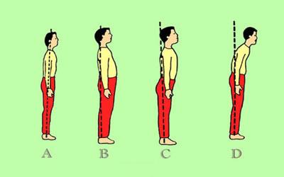 ناهنجاری قامتی,نحوه صحیح ایستادن,ناهنجاری های اسکلتی
