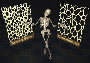 پوکی استخوان,پیشگیری از پوکی استخوان,ورزش برای درمان پوکی استخوان