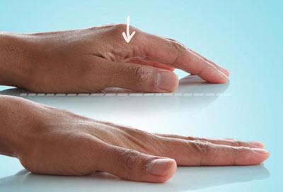 عمل زیبایی انگشتان دست