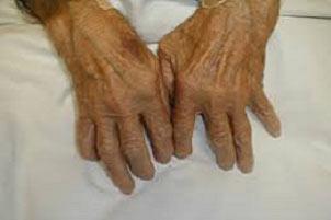 آرتروز,درمان آرتروز,ورزش مناسب برای بیماران مبتلا به آرتروز
