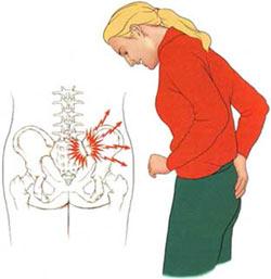 درد دنبالچه,راههای تسکین درد استخوان دنبالچه,علت درد گرفتن استخوان دنبالچه