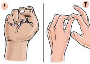 پیچخوردگی انگشت,علائم پیچخوردگی انگشت,ورزش