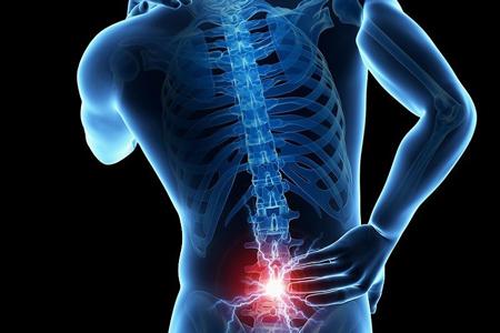 درد مهره آخر کمر,درمان کمر درد,درد در یک نقطه از کمر