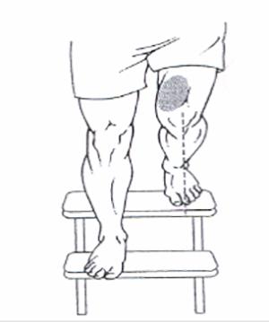 سندرم درد پاتلا،علامت هاي سندرم درد پاتلا،علايم سندرم نرمي کشک زانو