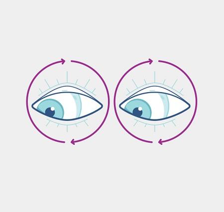 درمان خانگی انحراف چشم نوزاد, ورزش برای درمان انحراف چشم, درمان غیر جراحی انحراف چشم