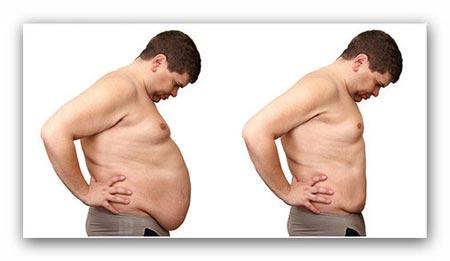 ابدومینوپلاستی,از بین بردن چربی های اضافی شکم,جراحی زیبایی شکم