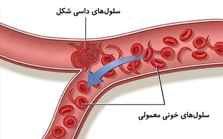 کم خونی داسی شکل,بارداری با کم خونی داسی شکل,بیماری سلول داسی شکل