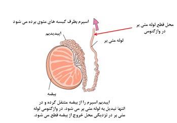 بستن لوله ها در مردان,وازکتومی,جلوگیری از حاملگی در مردان