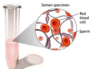 علت دیدن خون در مایع منی چه میتواند باشد ؟