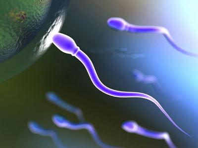 آزواسپرمی چیست,آزواسپرمی, فقدان اسپرم در مایع منی