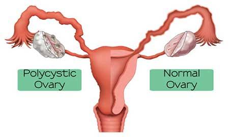 ناباروری زنان,علت ناباروری زنان,درمان ناباروری زنان