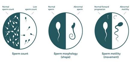 نحوه نمونه گیری اسپرم از بیضه, جمع آوری نمونه اسپرم بعد از وازکتومی, نحوه جمع آوری نمونه سمن